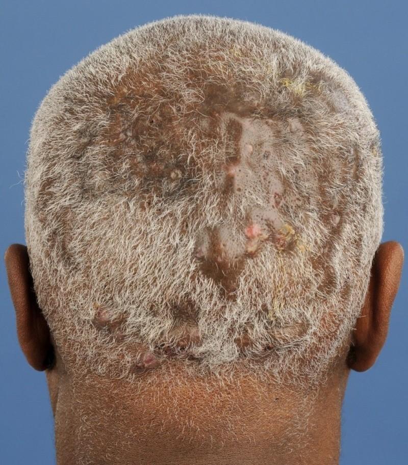 фолликулит волосистой части головы