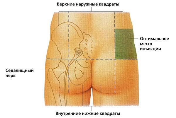 Оптимальная область для в/м инъекции
