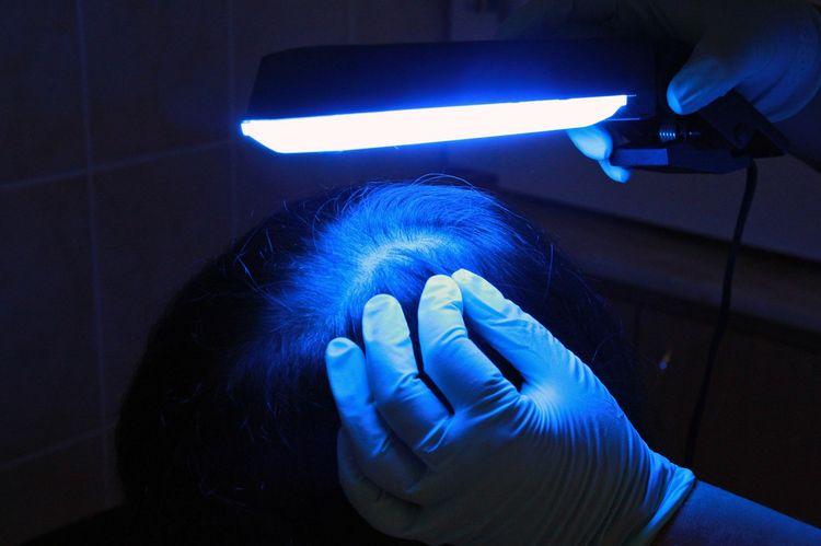 Диагностика лишая под лампой Вуда