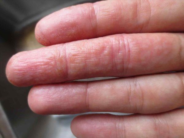 Дисгидроз рук