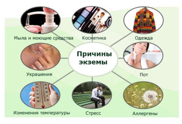 Экзема народные средства лечения