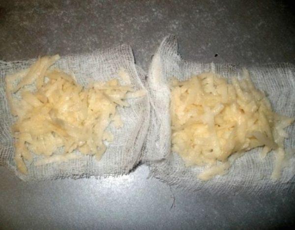 Лечение экземы картошкой