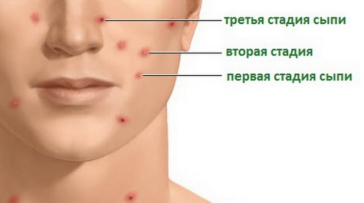 Стрептодермия заразна ли для окружающих, пути передачи заболевания