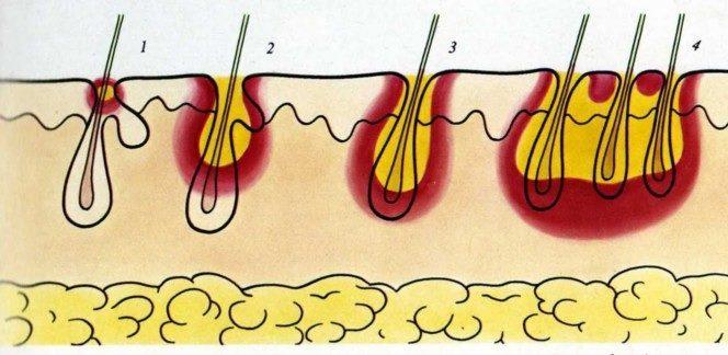 фаза развития фурункула и карбункула