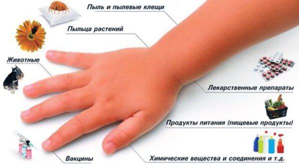 Причины васкулита