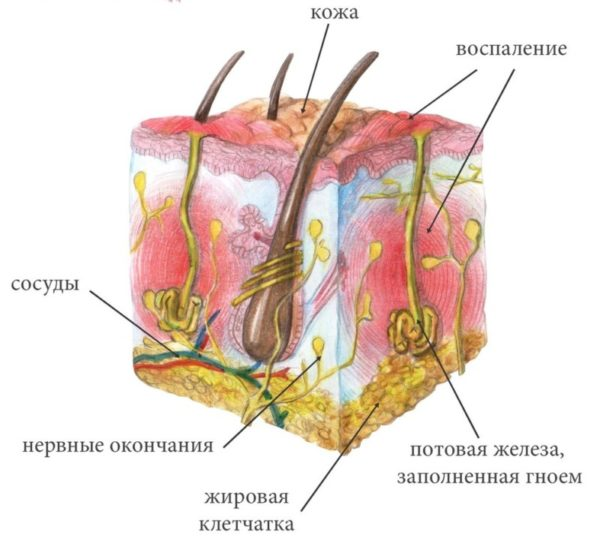 Причины возникновения гидраденита