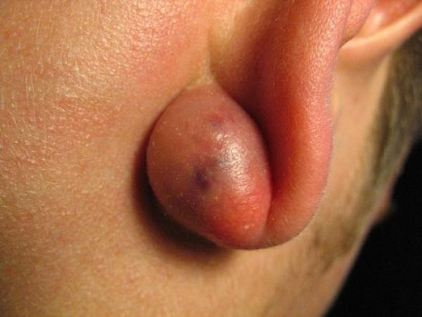 Новообразование за ухом