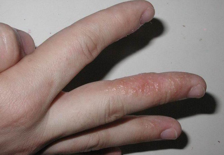 Гнойная сыпь на пальцах