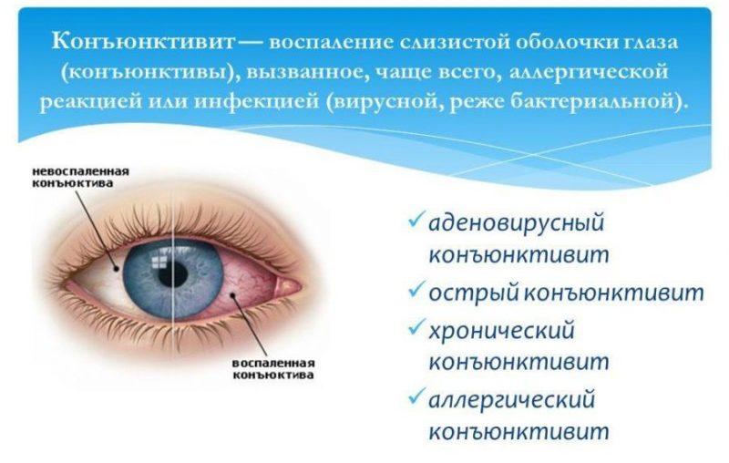 Коньюнктивит глаз