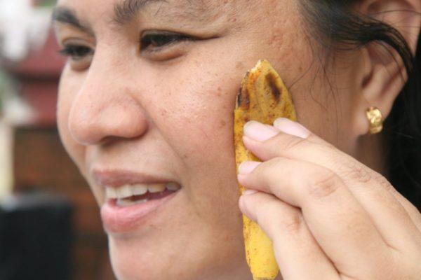 Кожура банана от прыщей