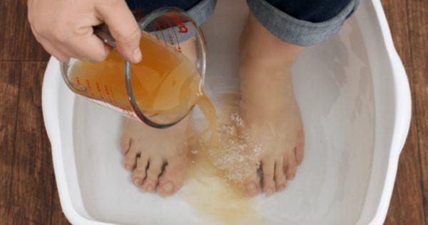 Ванночка для ног с йодом