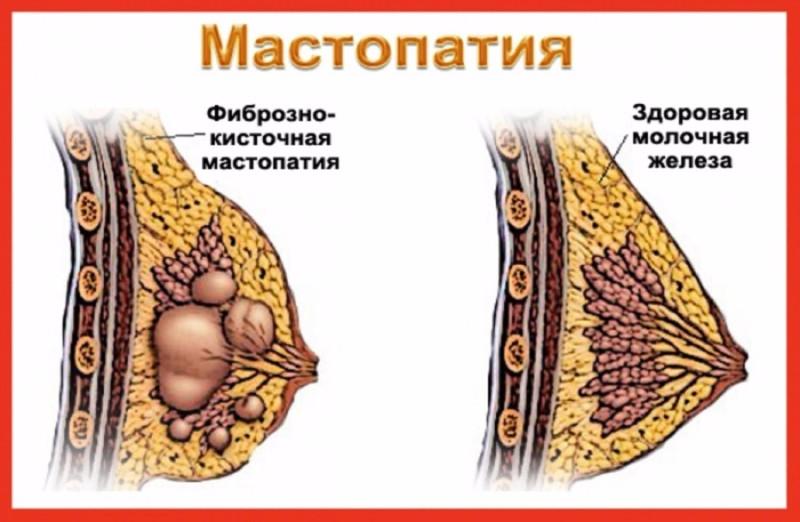 Мастопатия