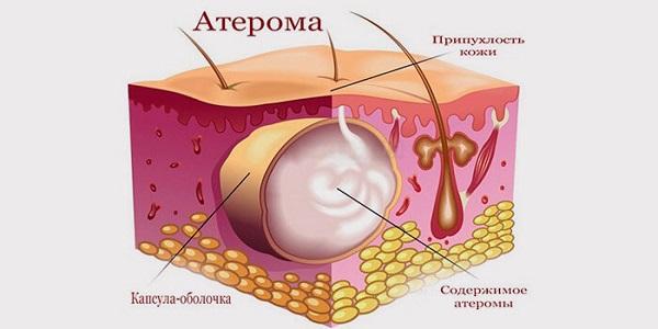 Воспаление сальных желез на шее