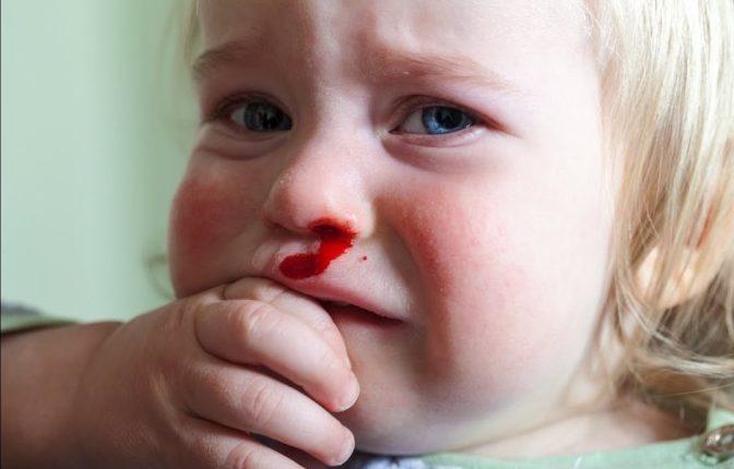 Носовые кровотечения при пурпуре