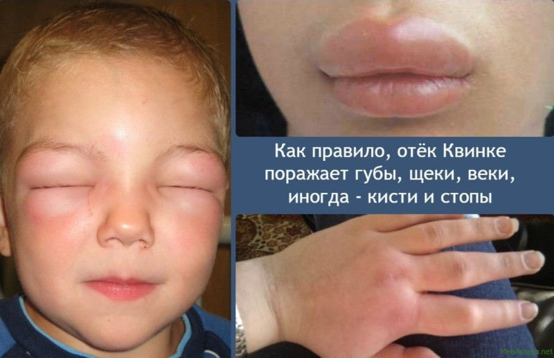 Отек Квинке: симптомы и лечение, первая помощь, осложнения