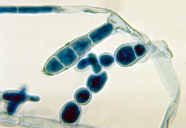 Epidermophyton floccosum под микроскопом