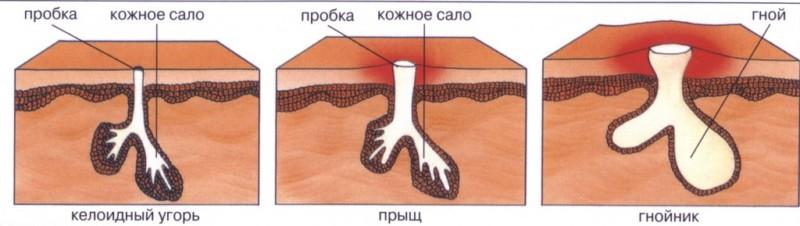 Причины фурункула