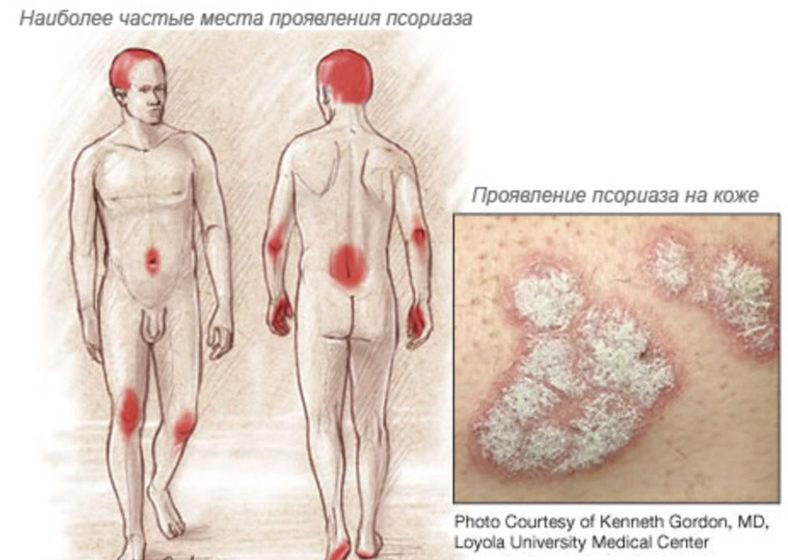 Проявления псориаза