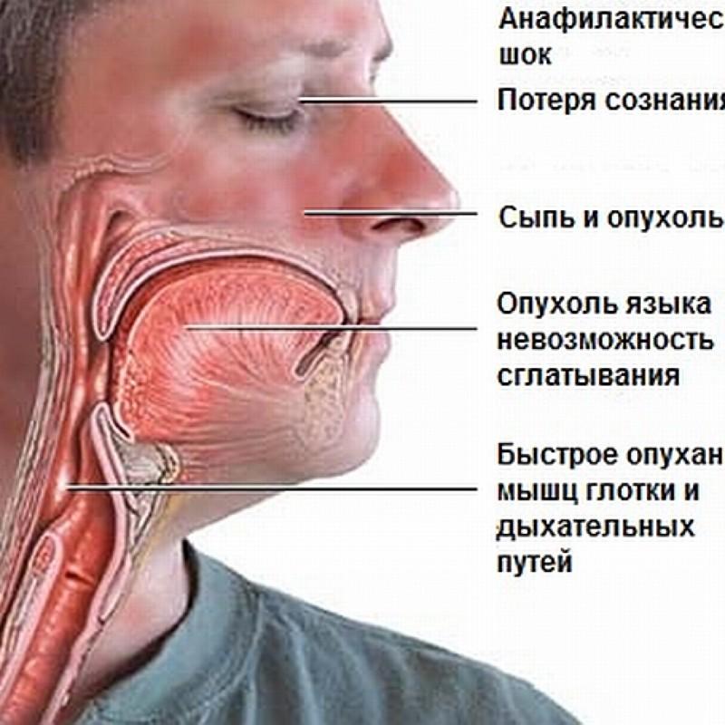 Реакция организма на аллерген