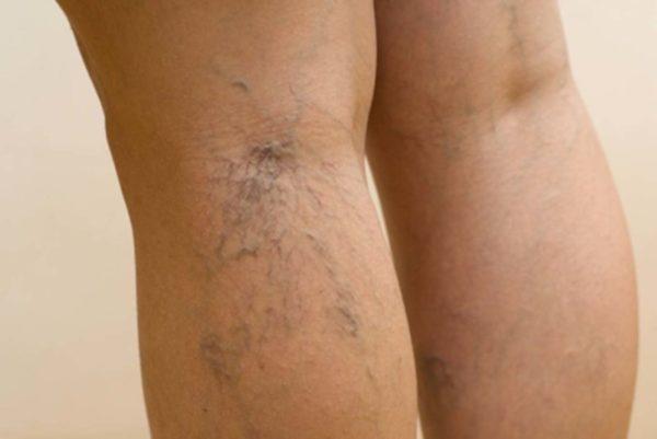 Почему появляются синяки на ногах без ударов диагностика прогноз