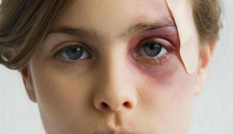 Синяки под глазами из-за травм