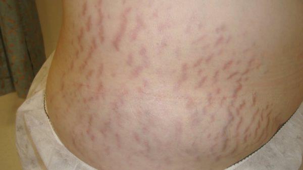 Растяжки при синдроме Кушинга