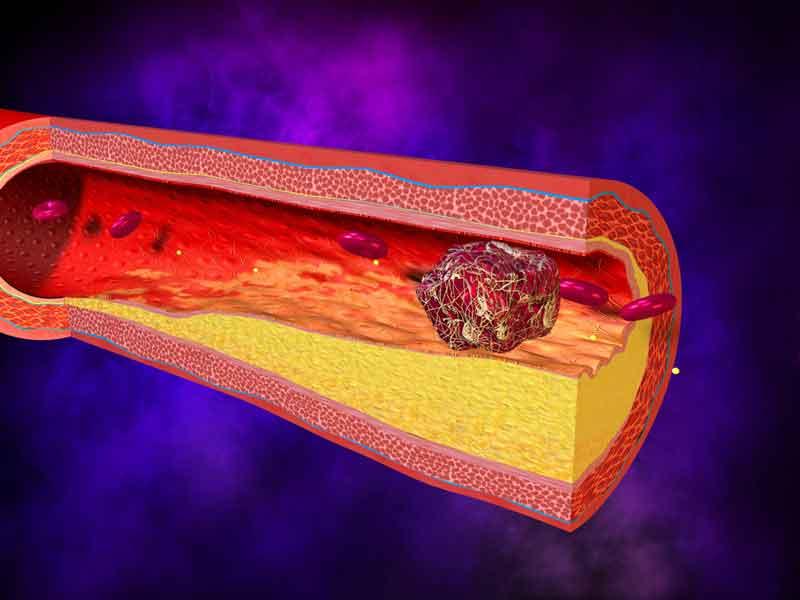 Тромботическая пурпура