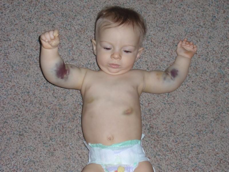 Тромбоцитопеническая пурпура у ребенка