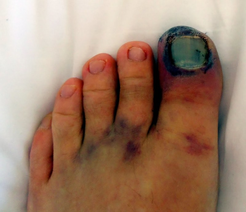 Ушиб ноги с образованием гематомы