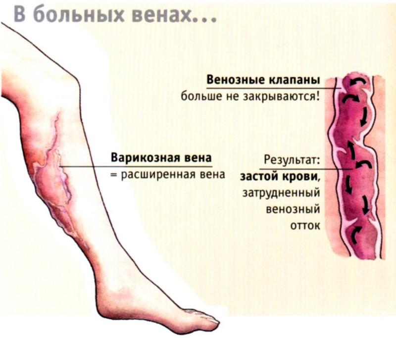 Фиолетовые точки на ногах