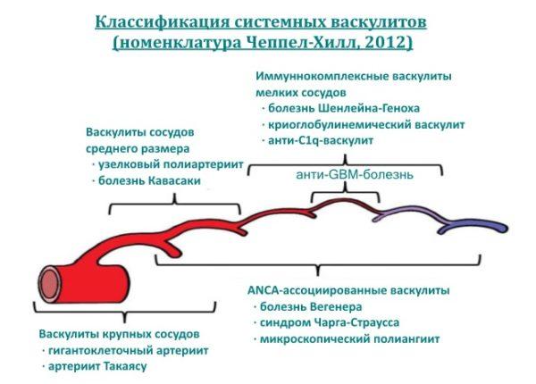 Классификация васкулитов
