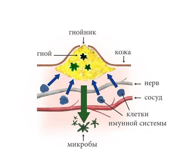 Схема образования гнойничка