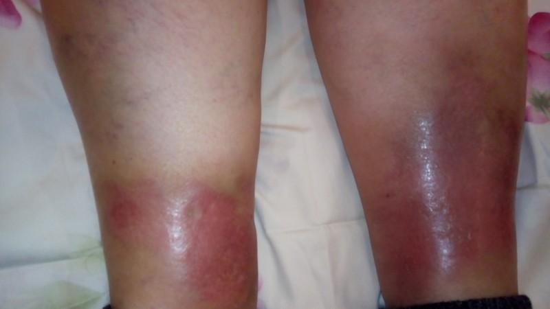Воспаление при васкулите