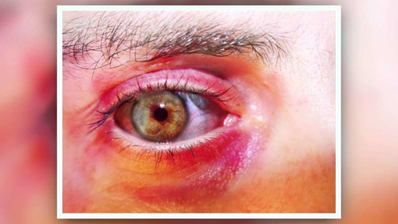 Отек век и зуд вокруг глаз: причины и лечение сухости и шелушения