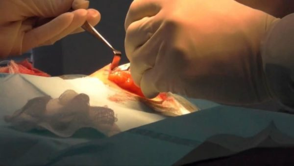 Хирургический метод