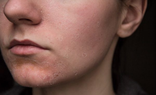 Зуд и шелушение кожных покровов