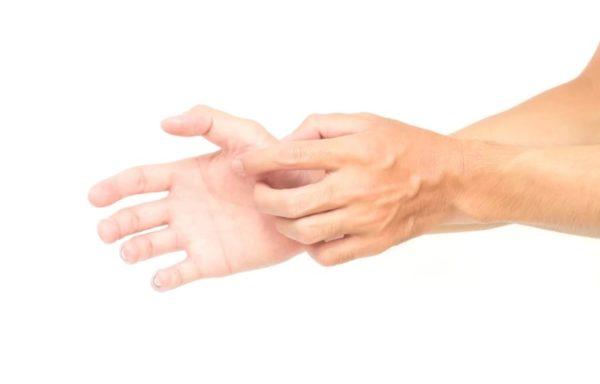 Чешутся руки от воды 1