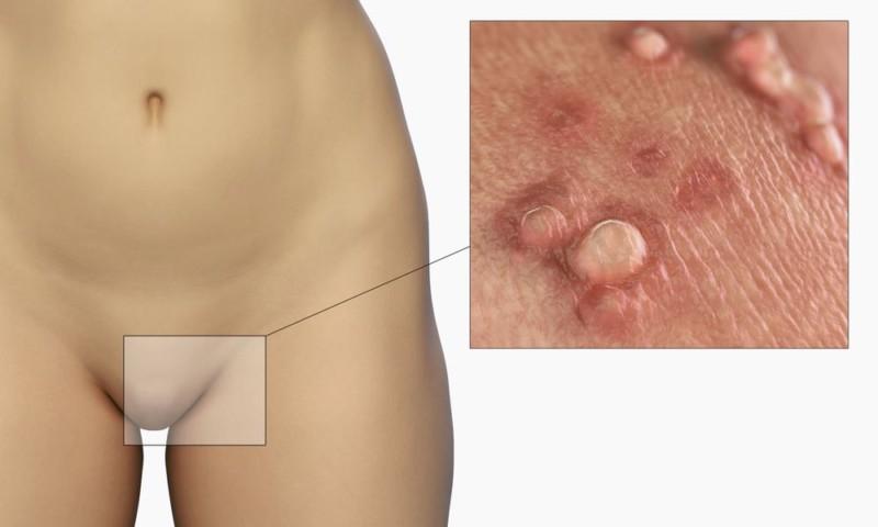 Акне на гениталиях