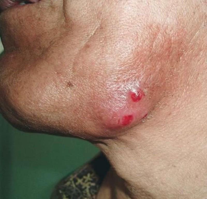 Актиномикоз челюстно-лицевой области