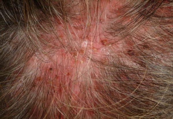 Гнойничковые болезни кожи головы