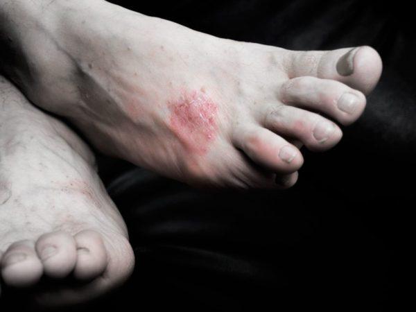 Аллергия на деготь