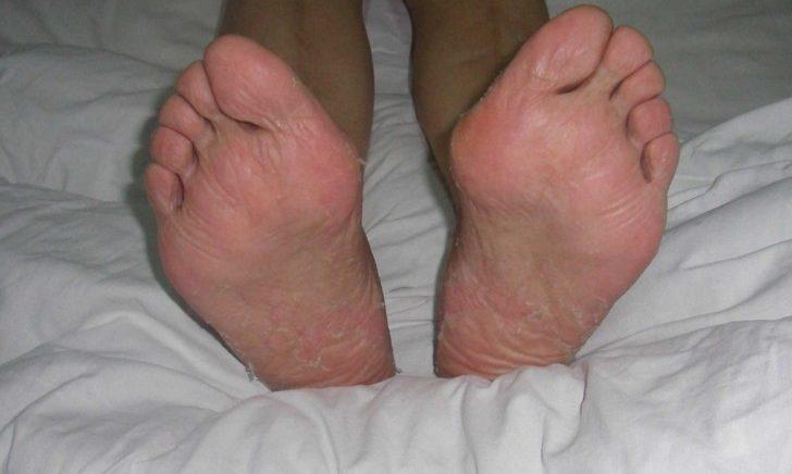 Эритема на ногах