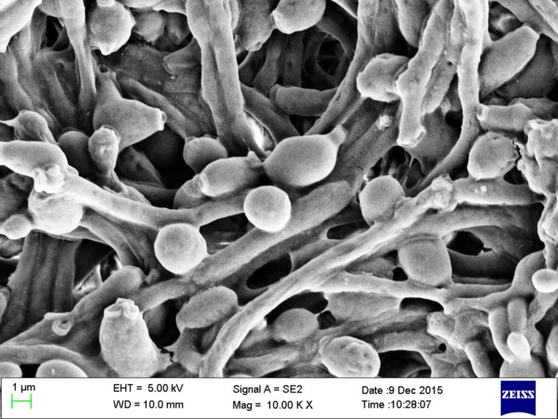 Грибок рода Candida под микроскопом