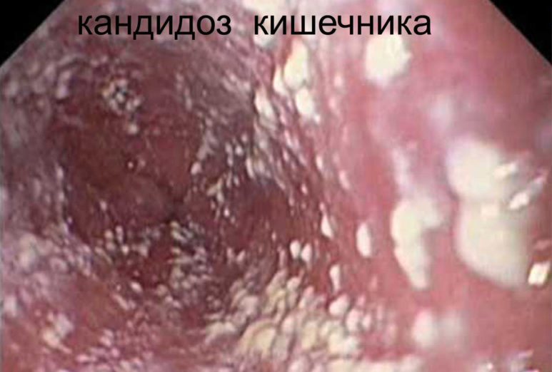 Заражение грибком ануса и способы лечения инфекции
