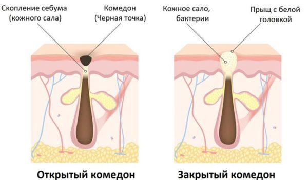 Этиология и патогенез комедонов на лице