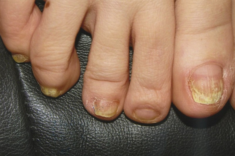 Микоз ногтей ноги