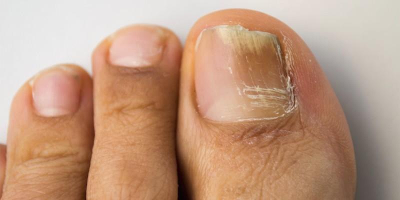 Ногти при онихомикозе