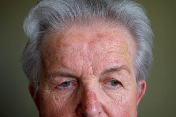 Прыщи у пожилых людей