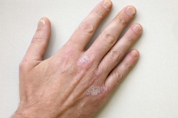 Псориаз на руке