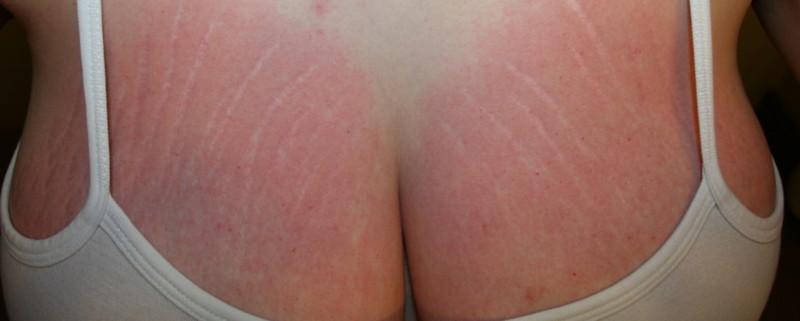 Растяжки на груди